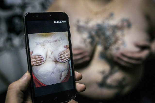 In this photo taken on Sunday, December 4, 2016 a tattoo artist shows the scars left on the body of Lilya, a victim of domestic violence, in front of Lilya who had just had tattoos to conceal these scars in Ufa, Russia. Yevgeniya Zakhar, a Russian tattoo artist from Ufa, a city about 1,200 kilometers (745 miles) east of Moscow, gives free tattoos to victims of domestic abuse, to cover their scars. (Photo by Vadim Braydov/AP Photo)