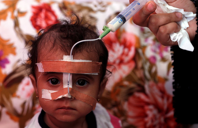 A Yemeni woman feeds her malnourished child through a tube at a UN-supported hospital in Sana'a, Yemen, 20 October 2020. According to reports, the United Nations has reduced and suspended 16 UN life-saving humanitarian programs in Yemen and 26 others are threatened with closure until the end of 2020 due to lack of funding, calling on international donors to urgently provide much needed humanitarian aid to millions of vulnerable people in the war-torn country. Nearly 80 percent of war-ridden Yemen's 29 million-population rely on humanitarian aid. (Photo by Yahya Arhab/EPA/EFE)