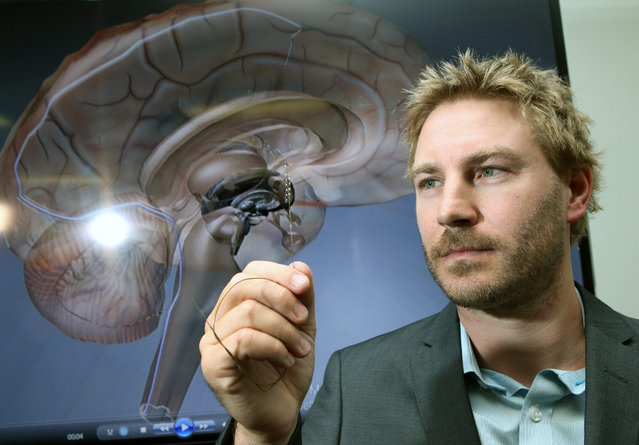 """Dr Nicholas Opie holds a stent-based electrode called stentrode as he poses for a photograph at the Royal Melbourne Hospital, in Melbourne, Australia, 09 February 2016. A """"revolutionary"""" device, which is implanted within a blood vessel in the brain, made of a flexible material called nitinol and of the size of a matchstick, may one day enable paralyzed people with spinal cord injuries to walk again, according to Melbourne researchers. According to reports, in 2017 a group of selected paralyzed people from Australia will receive the implant as a trial. (Photo by David Crosling/EPA)"""