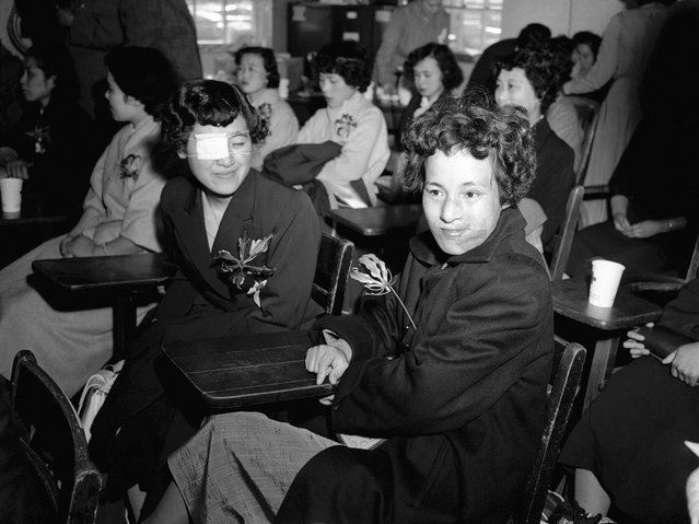 Japanese girls Mitsuko Kuranoto, left, and Emiko Takemoto, survivors of the Hiroshima atomic bombing 10 years earlier, face newsmen and photographers at the Mitchel Air Force base on Long Island, New York, on May 9, 1955. Twenty-five Japanese girls, scarred by the blast, made the 6,700 mile trip to New York cautiously hopeful that the miracle of plastic surgery can give them new faces. (Photo by Jacob Harris/AP Photo via The Atlantic)