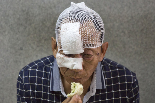 A man with his wounds bandaged eats a bun in a hospital receiving victims of an explosion in northeastern China's Tianjin municipality, Thursday, August 13, 2015. (Photo by Ng Han Guan/AP Photo)