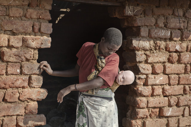 The women who flee to the centre with their albino children also act as guardians for the other albino children who have been abandoned at the centre in Kabanga Refuge Centre, Tanzania, 2012. The rescue centres protect albino people from the vicious hunters who sell their body parts to witch doctors. Photojournalist Ana Palacios, 43, visited the centre in Tanzania three times between 2012 and 2016 to find out more about the plight of albino people. Persecution of albinism is rooted in the belief that the body parts can transmit magical powers, however, they are also ostracised by those who believe that they are cursed and bring bad luck. The Tanzanian government has been forced to set up special centres to protect people with albinism from harm. (Photo by Ana Palacios/Barcroft Images)