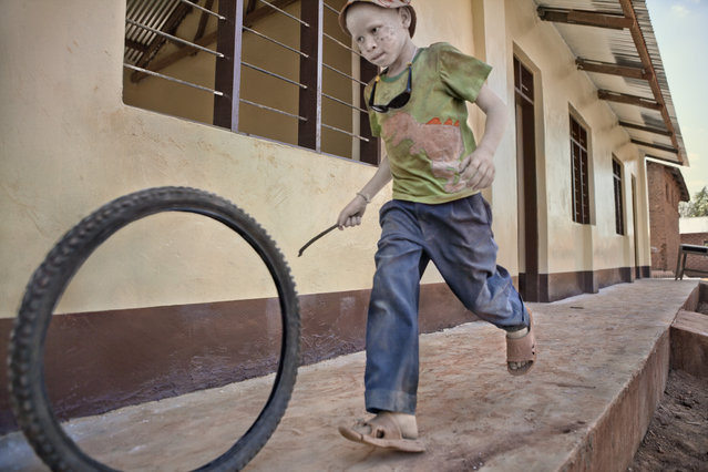 A young boy with albinism plays with a hoop and stick in Kabanga Refuge Centre, Tanzania, 2012. (Photo by Ana Palacios/Barcroft Images)
