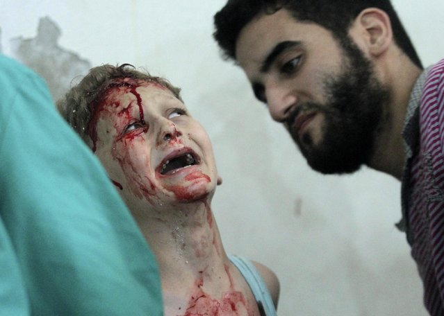 A boy, covered with blood, reacts after sustaining injuries following what activists said was an air strike at a site by forces loyal to Syria's President Bashar al-Assad in Duma in eastern al-Ghouta, near Damascus, in this July 29, 2014 file photo. (Photo by Badra Mamet/Reuters)