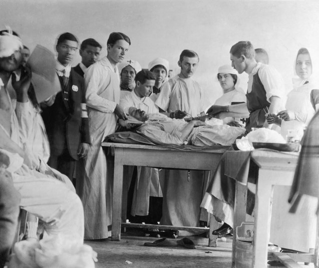 Surgeons operating on a wounded patient in a Serbian hospital during World War I, circa 1916. (Photo by FPG/Hulton Archive/Getty Images)