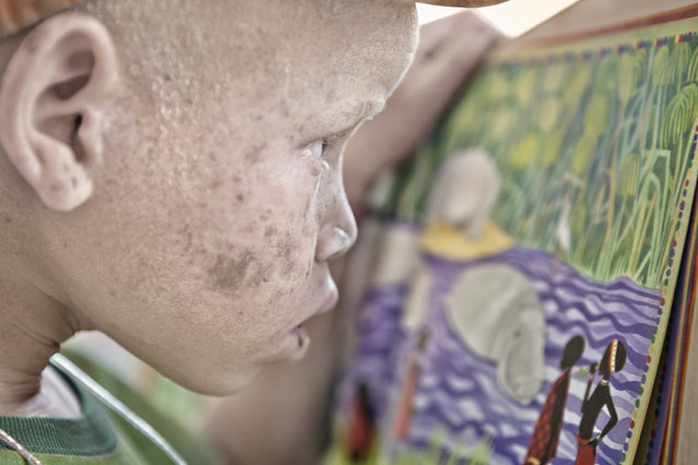 A young girl with albinism inspects her artwork in Moshi, Tanzania, 2016. (Photo by Ana Palacios/Barcroft Images)