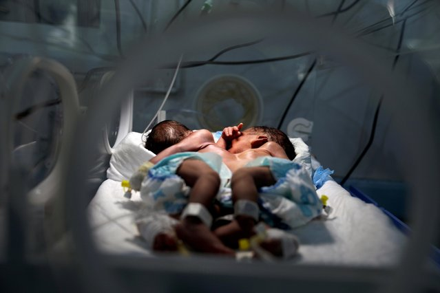 Newly born conjoined twins lie in an incubator at the child intensive care unit of al-Sabeen hospital in Sanaa, Yemen on December 18, 2020. (Photo by Khaled Abdullah/Reuters)