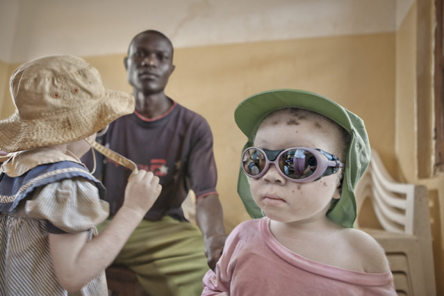An albino person's skin has little or no melanin, which is an effective blocker of solar radiation, and this makes them extremely vulnerable to the harsh effects of the sun in Kabanga Refuge Centre, Tanzania, 2012. (Photo by Ana Palacios/Barcroft Images)