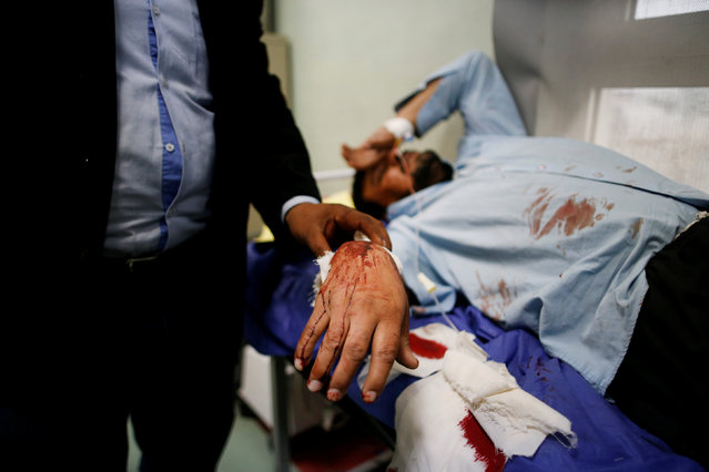 A man wounded in a bomb attack in Kokjali, receives treatment at a hospital in the northern Iraqi city of Erbil, December 22, 2016. (Photo by Ammar Awad/Reuters)