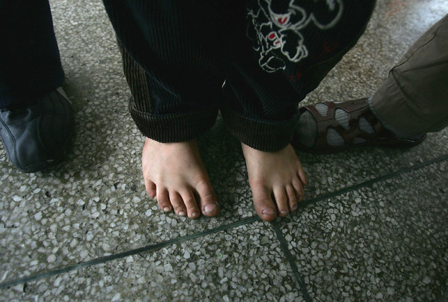 The shoeless feet of a Chinese kid are seen at an assistance center February 23, 2005 in Shenzhen, Guangdong Province, China. (Photo by Cancan Chu/Getty Images)