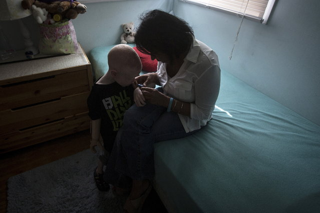 5-year-old Baraka Cosmas from Tanzania talks with Elissa Montanati of the Global Medical Relief Fund in his bedroom. (Photo by Carlo Allegri/Reuters)
