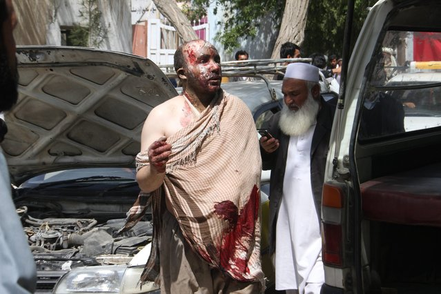 An Afghan man who was injured in a road accident, is brought to local hospital in Ghazni, Afghanistan, 08 May 2016. Fifty-two people were killed and at least 73 injured when two buses collided with a fuel tanker on 08 May in Kabul highway, an official said. (Photo by Sayed Mustafa/EPA)