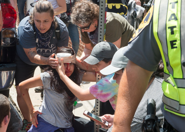 People receive first-aid after a car accident ran into a crowd of protesters in Charlottesville, VA on August 12, 2017. A picturesque Virginia city braced Saturday for a flood of white nationalist demonstrators as well as counter-protesters, declaring a local emergency as law enforcement attempted to quell early violent clashes. (Photo by Paul J. Richards/AFP Photo)