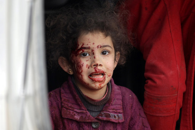 An injured girl reacts after a car bomb explosion in Jub al Barazi east of the northern Syrian town of al-Bab, Syria January 15, 2017. (Photo by Khalil Ashawi/Reuters)