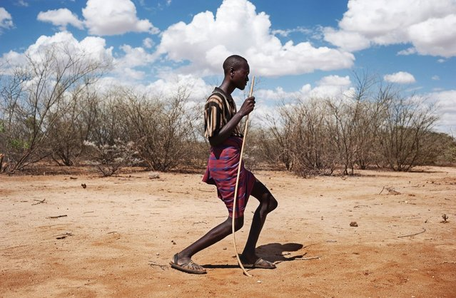 According to Grassani, droughts and wars between different pastoral groups seeking pasture and water for their animals are pushing many Kenyans dreaming of a better future towards Nairobi. The picture shows Edipo, 23, from the Turkana tribe in Kenya. Edipo was badly injured in an attack by a neighboring tribal group. (Photo by Alessandro Grassani)