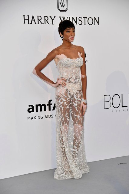 Canadian model Winnie Harlow arrives at the amfAR Gala Cannes 2017 at Hotel du Cap-Eden-Roc on May 25, 2017 in Cap d'Antibes, France. (Photo by Venturelli/WireImage for amfAR)