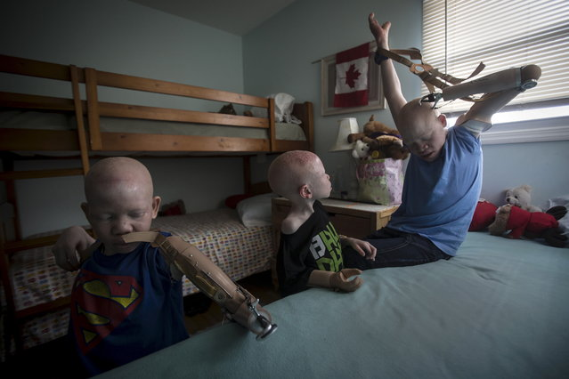 Mwigulu Matonage (L) and Emmanuel Festo (R) put on their prosthetic arms as Baraka Cosmas (C) looks on in their bedroom. (Photo by Carlo Allegri/Reuters)