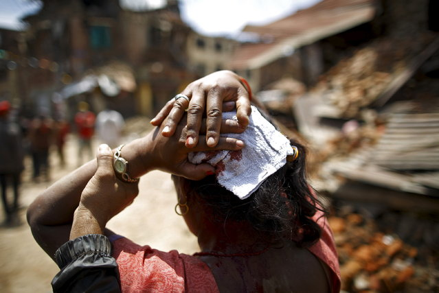 A woman injured in an earthquake walks toward a hospital soon after the earthquake in Sankhu, Nepal May 12, 2015. (Photo by Navesh Chitrakar/Reuters)