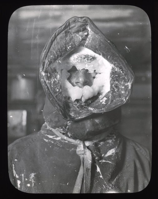 The icy face of a member of the Australasian Antarctic Expedition team, 1911-1914. Probably the face of the team meteorologist, C.T. Madigan