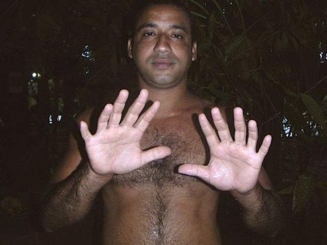 Yoandri Hernandez 24 fingers