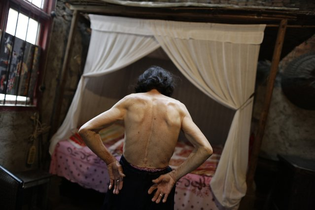 "Qin Zhengyu, 78, shows moles and tumours on her back in her home at Heshan village, in Shimen county, central China's Hunan Province, in this June 4, 2014 file photo. Heshan is in an area rich in realgar, or arsenic disulphide, and is sometimes given the grim label ""cancer village"". (Photo and caption by Jason Lee/Reuters)"