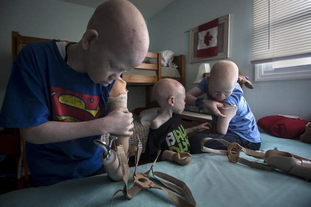 Mwigulu Matonage (L) and Emmanuel Festo (R) put on their prosthetic arms as Baraka Cosmas (C) looks on in their bedroom in Staten Island. (Photo by Carlo Allegri/Reuters)