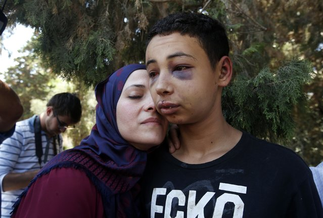 Tariq Khdeir is greeted by his mother after being released from jail in Jerusalem July 6, 2014. The picture was taken outside the courthouse following the release of Khdeir,  a 15-year-old American of Palestinian descent, whose beating by Israeli police during a violent protest in East Jerusalem drew U.S. concern. (Photo and caption by Ronen Zvulun/Reuters)