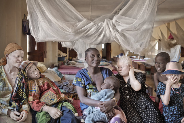 The Tanzanian government set up special protective centres for people with albinism after many had to flee their homes from traffickers in Kabanga Refuge Centre, Tanzania, 2012. (Photo by Ana Palacios/Barcroft Images)
