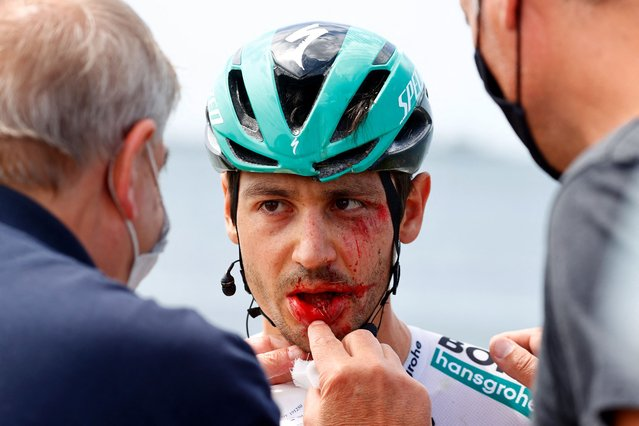 Team Bora-Hansgrohe rider Germany's Emanuel Buchmann is examined after being involved in a massive pack crash during the 15th stage of the Giro d'Italia 2021 cycling race, a 147km race between Grado and Gorizia on May 23, 2021. (Photo by Luca Bettini/AFP Photo)