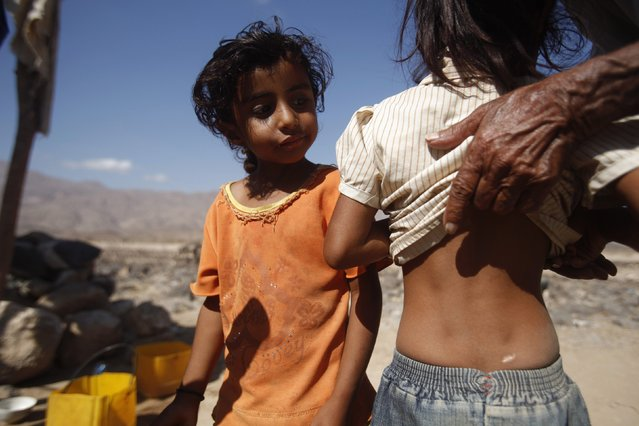 Sumaia Abdullah Louqye, 4, (L) looks as the father of Nada Mokbel Louqye, 5, shows the scars on her back, sustained in a 2009 U.S missile attack, in the mountainous village of al-Ma'jalah, in the southern Yemeni province of Abyan February 2, 2013. The two girls are the only survivors among the members of their families that were living in a rural community at the time that it was hit by a U.S. missile strike in December 17, 2009, according to local authorities. Nada's father, who is also the grandfather of Sumaia, was out herding his camels during the attack, and is the only family member left for the two girls. The attack left 41 people, including 21 children and 14 women dead in the highest civilian death toll of any U.S. strike in Yemen to date, according to an Amnesty International report. (Photo by Khaled Abdullah/Reuters)
