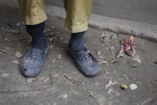 The feet of porter Ibrahim Sino, 33, are pictured following a 16-day K2 base camp trek, in the village of Askole in the Karakoram mountain range in Pakistan September 11, 2014. (Photo by Wolfgang Rattay/Reuters)