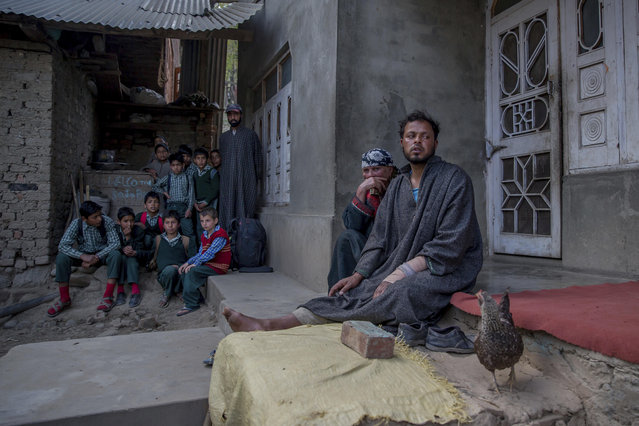 In this April 18, 2017 photo, Kashmiri man Farooq Ahmed Dar, right, sits along with her mother as school children watch from distance at his residence in Chill village, about 60 Kilometers (38 miles) southwest of Srinagar, Indian controlled Kashmir. A viral video that showed the young shawl weaver Dar strapped to a patrolling Indian army jeep as a human shield against stone-throwing protesters incensed Kashmiris and sparked region wide debate. (Photo by Dar Yasin/AP Photo)