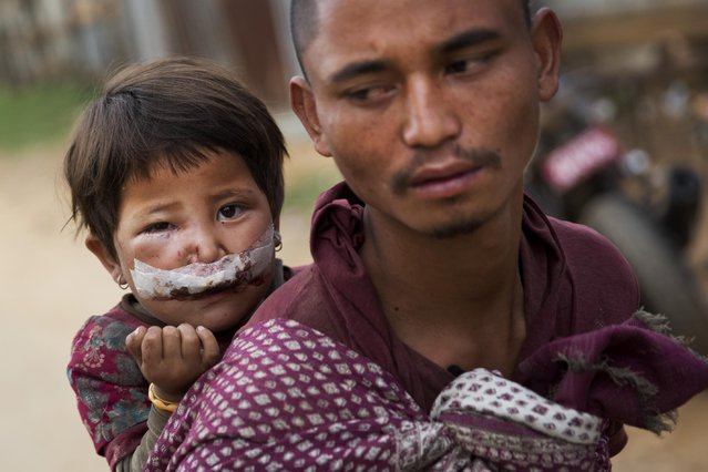 Nepalese child Subha Laxini, 3, who was injured in Tuesday's earthquake is carried by father Lak Bahadur on their way to a camp for the displaced in Chautara, Nepal, Wednesday, May 13, 2015. Nepal, just beginning to rebuild after a devastating April 25 earthquake, was hit by a magnitude 7.3 quake Tuesday. (Photo by Bernat Amangue/AP Photo)