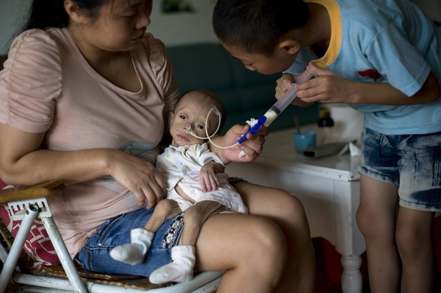 Wu Lunjiao holds her daughter Yuanyuan, who is suffering from an unknown disease, as her son feeds Yuanyuan with milk, by pumping it through a tube into her stomach, at their home in Shenzhen, Guangdong province August 28, 2014. Yuanyuan, who weighs 2.5 kg (5.5 lbs), grew only 0.05 kg after she was given birth 13 months ago. (Photo by Reuters/Stringer)