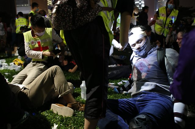 Injured protesters are treated during a rally close to the chief executive office in Hong Kong, November 30, 2014. (Photo by Bobby Yip/Reuters)