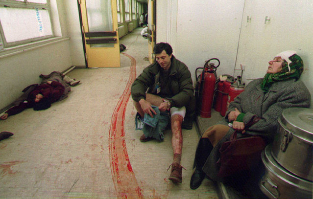 Civilians wounded by a mortar bomb in Sarajevo's central market wait for treatment in a hospital corridor, February 5, 1994. The woman at left died while waiting for treatment.. (Photo by Corinne Dufka/Reuters)