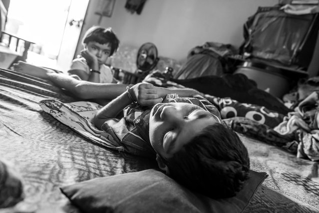 Unnati, 6 years old, at home with his sister Ishika, 4 years old, in the Mahamai Ka Bagh neighborhood. Unnati was born to parents contaminated by a carcinogenic and mutagenic water supply. This year marks the 31st anniversary of the 1984 Union Carbide gas tragedy that killed thousands of citizens of Bhopal within 72 hours and has gone on to claim thousands more as a result of the polluted environment. (Photo by Giles Clarke/Getty Images)