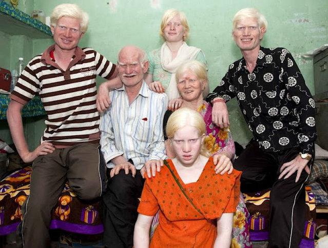World's Biggest Albino Family