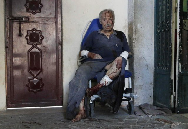An injured man waits for medical attention after, according to activists, two barrel bombs were thrown by forces loyal to Syria's President Bashar Al-Assad in the Hullok neighbourhood of Aleppo, in this May 1, 2014 file photo. (Photo by Hosam Katan/Reuters)