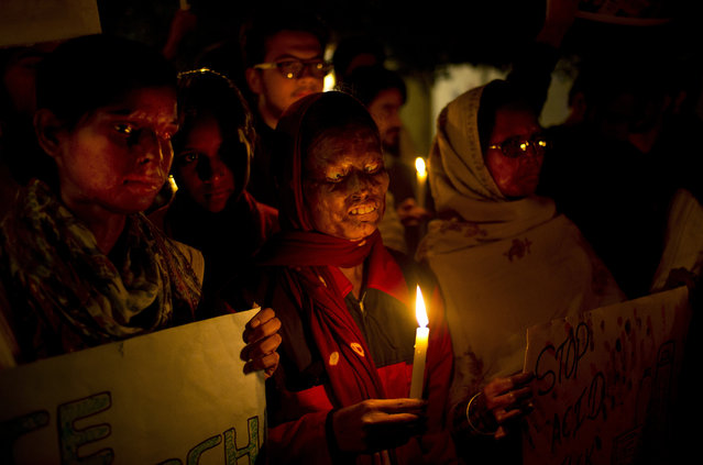 In this December 16, 2014 file photo, acid attack survivors participate in a candlelit vigil protesting violence against women as they mark the second anniversary of the deadly gang rape of a student on a bus, in New Delhi, India. An Indian court has on Thursday, Sept. 8, 2016, sentenced a man to death for killing his 23-year-old woman neighbor by throwing sulfuric acid at her for refusing to marry him three years ago. This is the first death punishment for an acid attack under stringent laws framed by the government to curb crimes against women following a fatal gang rape of a young woman in a moving bus in New Delhi in 2012. (Photo by Saurabh Das/AP Photo)