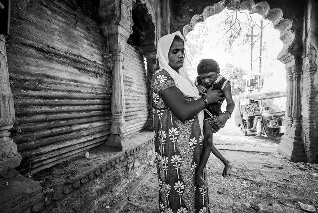 Abhay Kumar, 6 years old, with his mother Vineeta at home in the Dwarka Nagar neighborhood. Humera was born to parents contaminated by a carcinogenic and mutagenic water supply. (Photo by Giles Clarke/Getty Images)