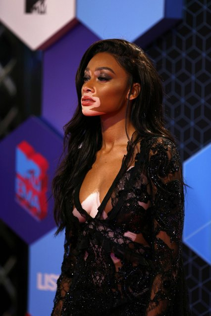 Model Winnie Harlow attends the 2016 MTV Europe Music Awards at the Ahoy Arena in Rotterdam, Netherlands, November 6, 2016. (Photo by Michael Kooren/Reuters)