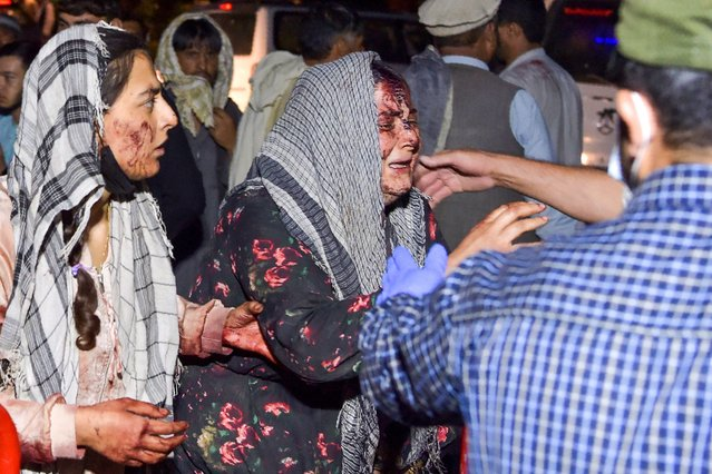 Wounded women arrive at a hospital for treatment after two blasts, which killed at least five and wounded a dozen, outside the airport in Kabul on August 26, 2021. (Photo by Wakil Kohsar/AFP Photo)