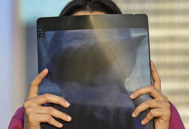 A woman watches a solar eclipse through an x-ray film at the main business district in Jakarta, Indonesia, Wednesday, March 9, 2016. (Photo by Tatan Syuflana/AP Photo)