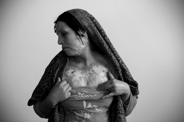 Rahimeh, 30,  shows the scars from burns she inflicted on herself sixteen years ago, April 6, 2010 in Herat, Afghanistan.  The issue of female self immolation is incresaing in prevalence in the region close to the border with Iran, as tensions rise between the traditional subordinate role of women and the increased awareness of women's rights in the wider world. (Photo by Majid Saeedi/Getty Images)