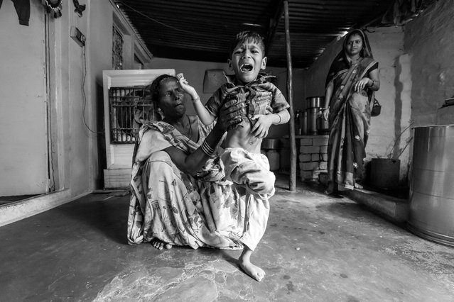 Manish, 4 years old, with his mother Pooja at home in the Mata ki Madiya neighborhood. Manish was born to parents contaminated by a carcinogenic and mutagenic water supply. (Photo by Giles Clarke/Getty Images)