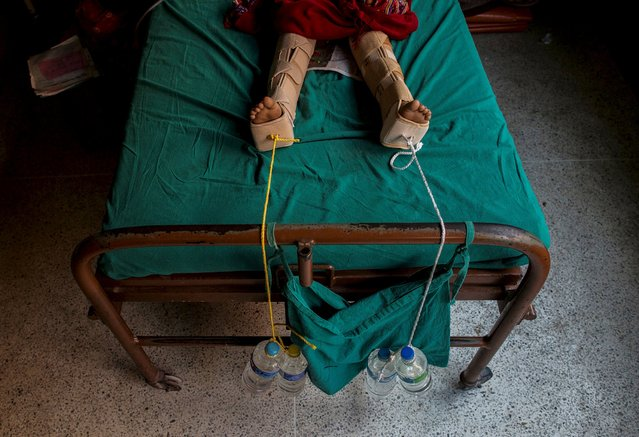 Ropes weighted down with water bottles are used to apply traction to the legs of an injured girl after she fractured them during Saturday's earthquake, at a hospital in Kathmandu, Nepal, April 29, 2015. (Photo by Danish Siddiqui/Reuters)