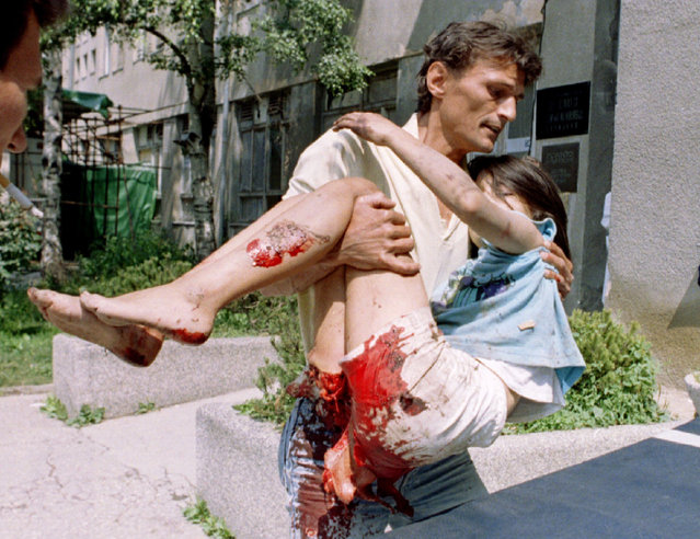 An aid worker carries badly wounded 11-year old girl into the Kosevo hospital in Sarajevo after she was injured by a shell, July 1995. (Photo by Reuters)