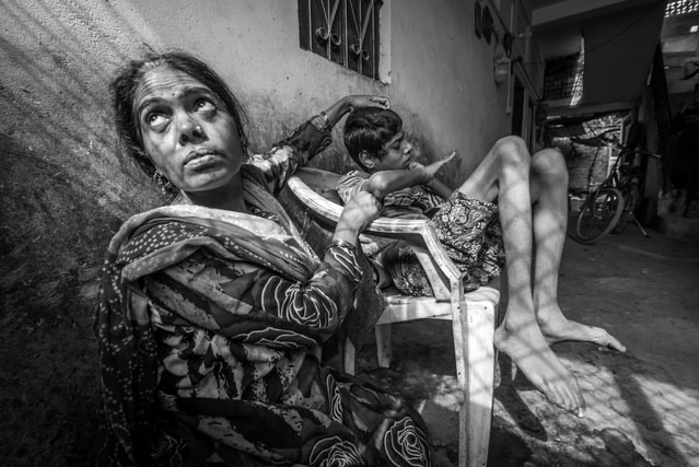 Ateeq, 15 years old, with his mother Shehnaz at home in the Karond neighborhood. Ateeq was born to parents contaminated by a carcinogenic and mutagenic water supply. (Photo by Giles Clarke/Getty Images)