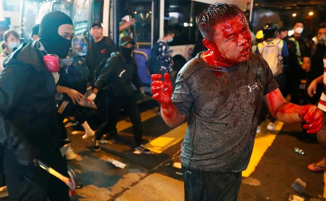 A wounded man is attacked during a protest in the Mong Kok area in Hong Kong, China on November 11, 2019. (Photo by Thomas Peter/Reuters)